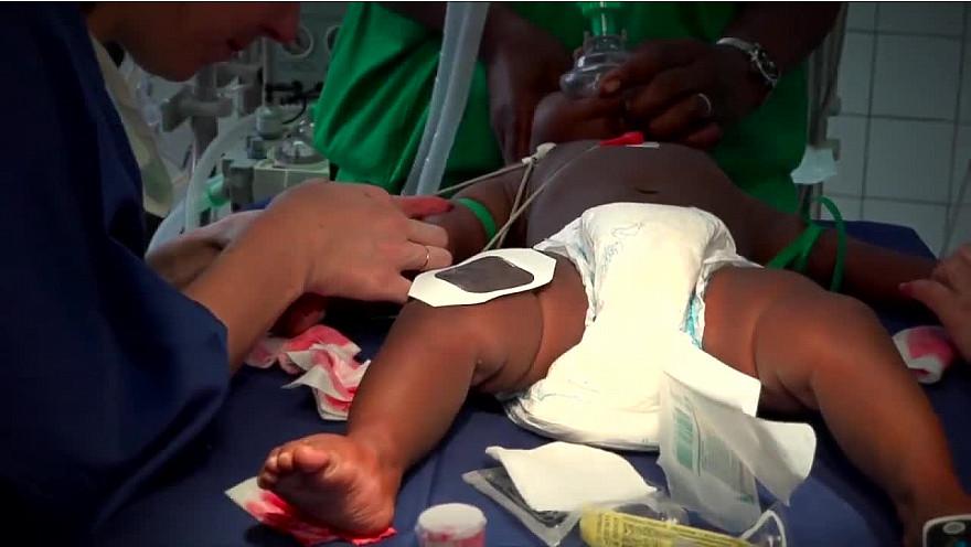 ALMOHA en mission humanitaire de chirurgie des malformations rares et congénitales à Yaoundé. (Cameroun)